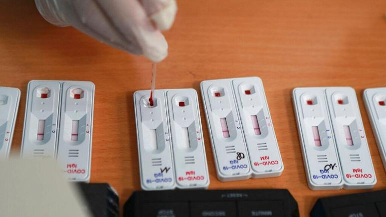 پژوهشهای جدید فرضیه ارتباط ابتلا به نوع حاد کرونا با گروه خون را تقویت کرد