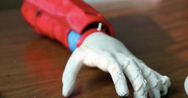 ابداع بازوی مصنوعی خورشیدی برای یک پسر ۸ ساله|خبر فوری