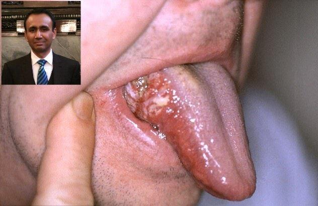 بهره گیری از هوش مصنوعی برای تشخیص و درمان سرطان دهان|خبر فوری