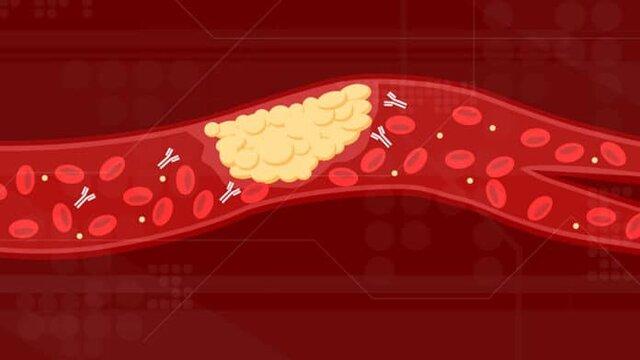 علت لخته شدن خون بیماران مبتلا به کرونا کشف شد|خبر فوری