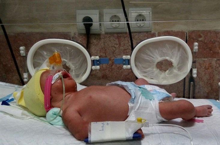 مادر باردار کاشانی مبتلا به کرونا پس از ۴۰ روز از کما خارج شد/ حال مادر و نوزاد خوب است