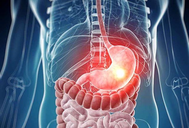 بیماری عفونی که معده و روده را تحت تأثیر قرار میدهد|خبر فوری