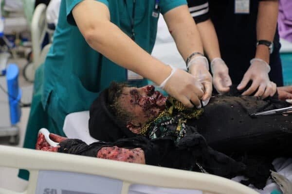 چهارشنبهسوری, اورژانس تهران: تاکنون ۲۸ مصدوم حوادث چهارشنبهسوری داشتیم, رسا نشر - خبر روز