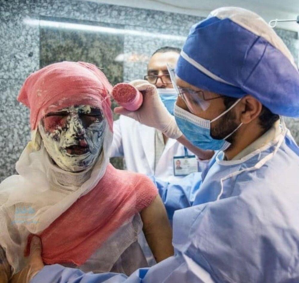 چهارشنبهسوری, چهارشنبهسوری شروع شد!/ مصدومیت ۲۲۷ نفر بر اثر انفجار مواد محترقه/ سه نفر جان باختند, رسا نشر - خبر روز